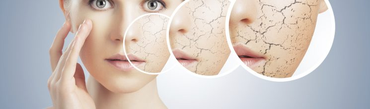 What do you know about Dry Skin?