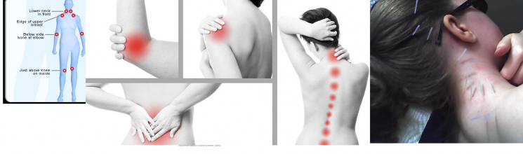 Fibromyalgia – Causes and Management